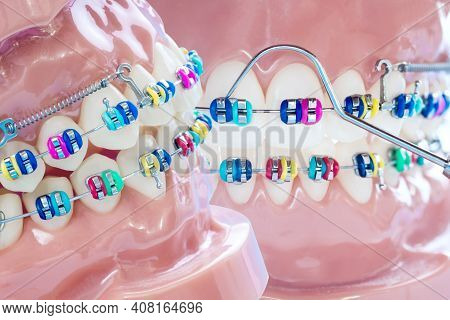Close Up Dentist Tools And Orthodontic Model  - Demonstration Teeth Model Of Varities Of Orthodontic