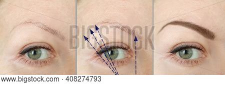 Eyebrows Before And After Correction Closeup, Beautician