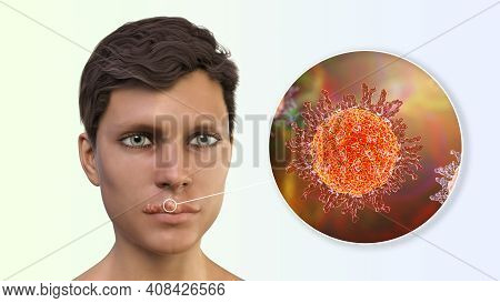 Herpes Labialis, Also Known As Cold Sores, 3d Illustration Showing Lesions On The Man's Lips Caused