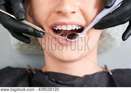 Top View On Girls Mouth In Dentist Chair. Cropped Dentists Hands, In Black Rubber Gloves, Checking U