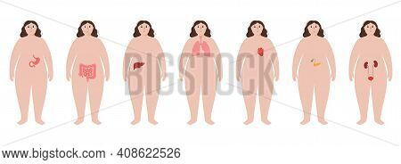 Pain In Obese Woman Body. Problem With Liver, Pancreas, Lungs And Other Organs In Overweight Female