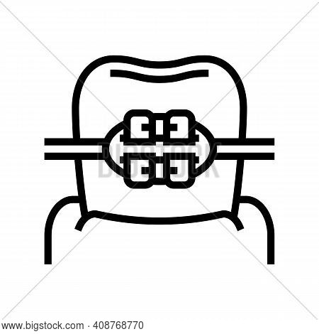 Mount Tooth Braces Line Icon Vector. Mount Tooth Braces Sign. Isolated Contour Symbol Black Illustra