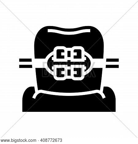 Mount Tooth Braces Glyph Icon Vector. Mount Tooth Braces Sign. Isolated Contour Symbol Black Illustr