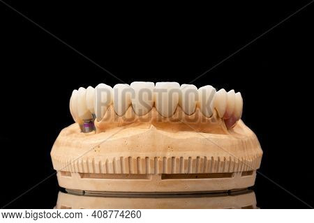 Close-up Front View Of A Dental Upper Jaw Prosthesis On Black Glass Background. Artificial Jaw With