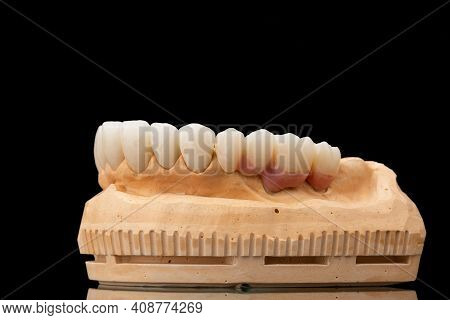 Close-up Side View Of A Dental Upper Jaw Prosthesis On Black Glass Background. Artificial Jaw With V