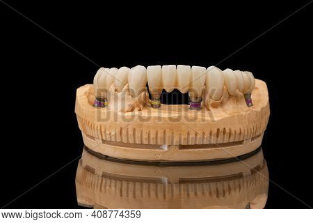 Close-up Front View Of A Dental Lower Jaw Prosthesis On Black Glass Background. Artificial Jaw With