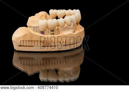 Close-up Side View Of A Dental Lower Jaw Prosthesis On Black Glass Background. Artificial Jaw With V