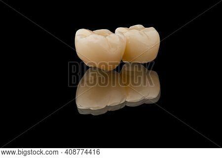 Dental Bridge Of 2 Molar Teeth. Close-up Photo Of Metal Free Ceramic Teeth Crown Isolated On Black G