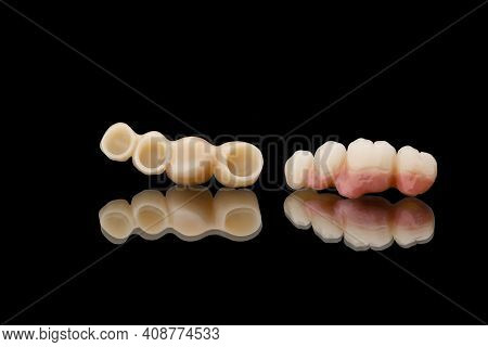Two Dental Bridges Of Four Teeth. Close-up Photo Of Ceramic Teeth Crowns Isolated On Black Glass Bac