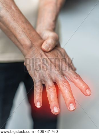 Peripheral Neuropathy Pain In Elderly Patient On Hand, Palm, Fingers And Sensory Nerves With Numb, A