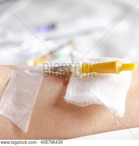 Medicine. Intravenous Injection. The Drip Is Intravenous. First Aid