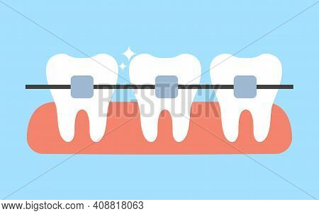 White Teeth With Dental Braces Vector Flat Illustration. Alignment Of Bite Of Teeth. Dental Clinic S