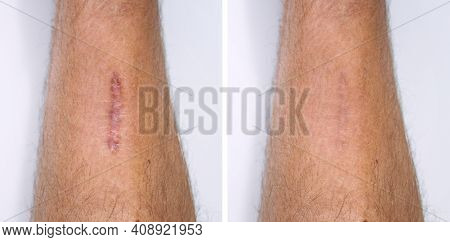 Result After Procedure Of Scar Removing. Scar Surgery Or Laser Removal. Skin Imperfections Or Defect