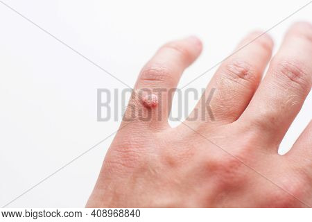 Closeup Of Finger Wart Isolated On White Background. Skin Diseases. Viral Wart On Hand.