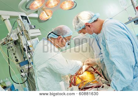 Team of surgeon in uniform perform heart transplantation operation on a patient at cardiac surgery clinic poster
