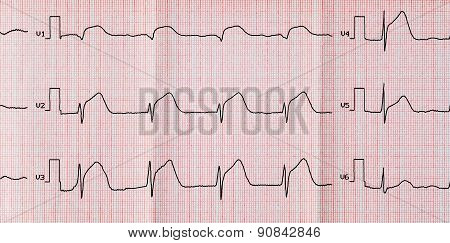 Ecg With Acute Period Macrofocal Widespread Anterior Myocardial Infarction