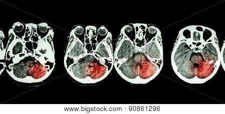 Stroke ( CT scan of brain and base of skull and Stroke ) poster