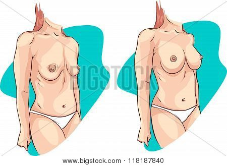 Vector Illustration Of A  Breast Uplift Before And After Treatment