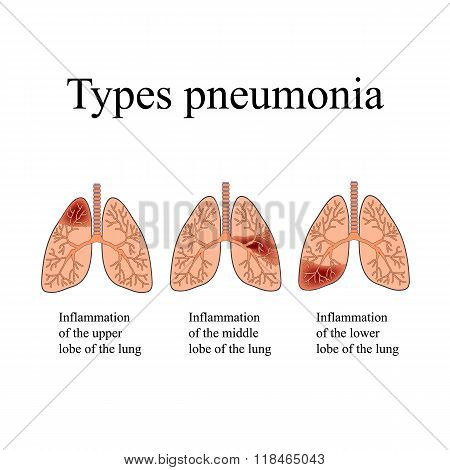 Pneumonia. The anatomical structure of the human lung. Type of pneumonia.  Vector illustration on is