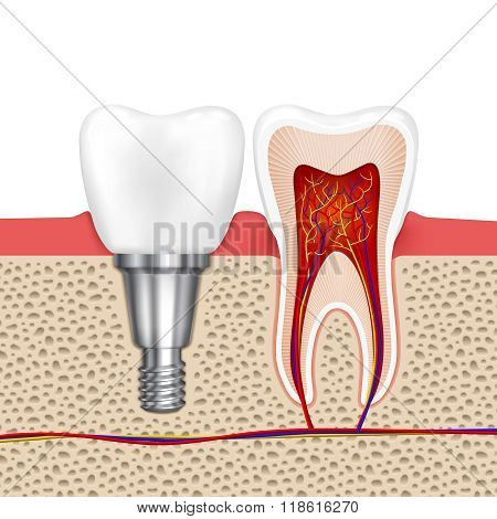 Healthy teeth and dental implant
