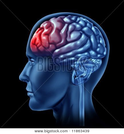 Human brain with red head ache symbol.