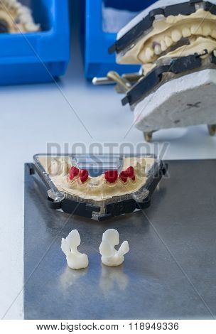 Dental Model And Two Tooth Made In Lithium Disilicate.