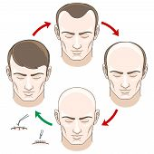Stages of hair loss, hair treatment and hair transplantation. poster