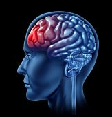 Human brain with red head ache symbol representing pain and therapy for medical health issues. poster