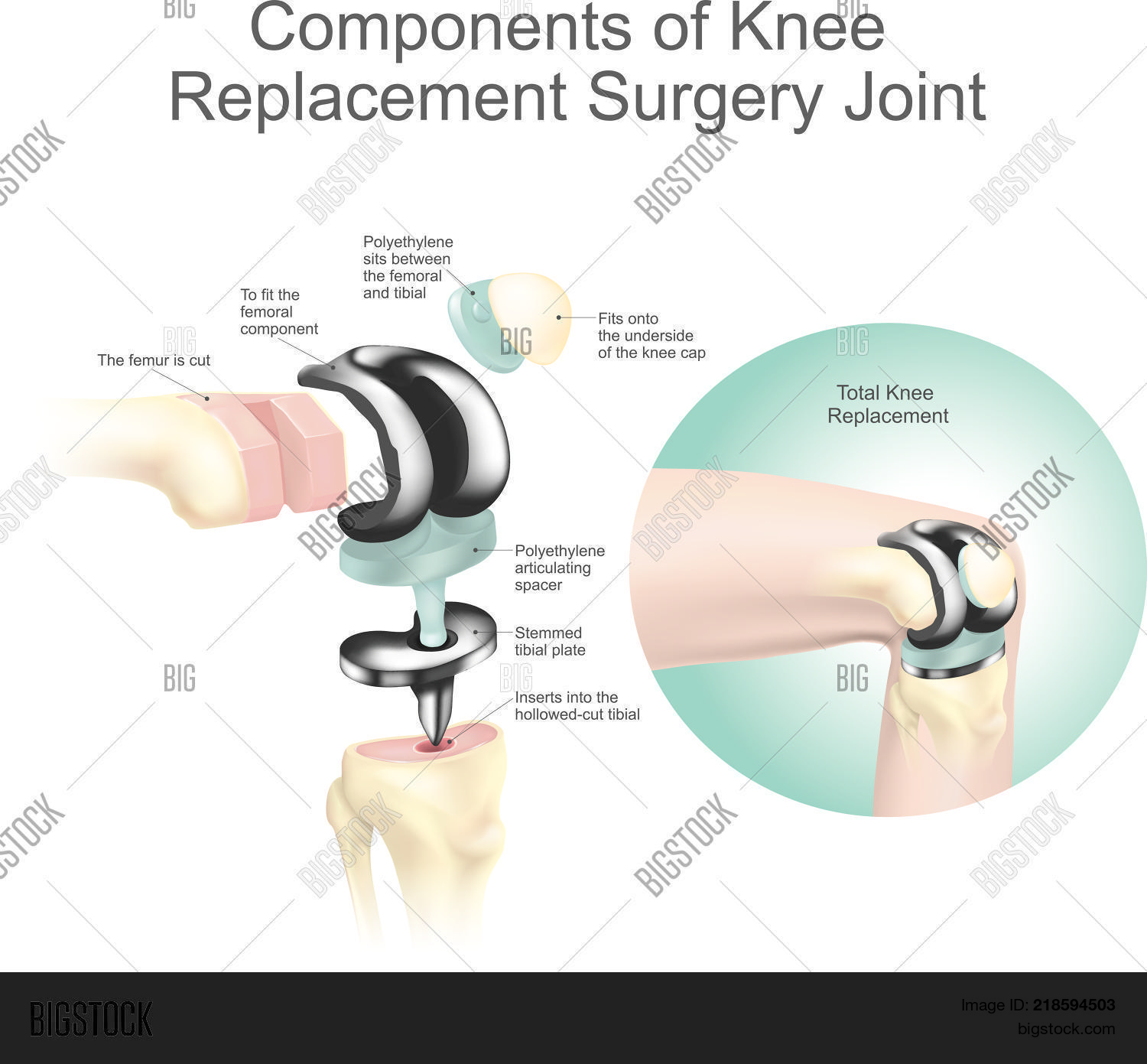 Components Knee Vector & Photo (Free Trial) | Bigstock
