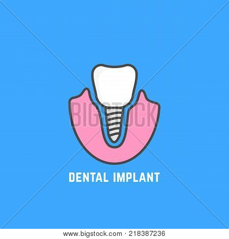 simple icon of white dental implant. concept of med service for prosthetics or protese badge. stroke flat style trend color logotype or graphic art design illustration isolated on blue background