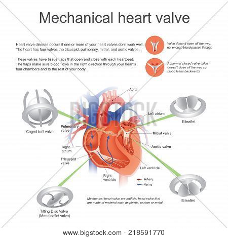 Mechanical heart - artificial valve that are made of material such as plastic carbon or metal
