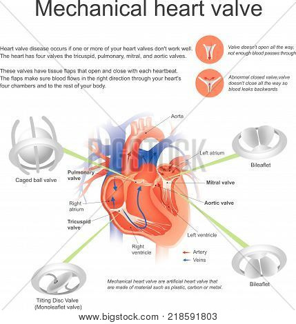 Heart valve disease occurs if one or more of your heart valves don't work well.the heart has four valves the tricuspid pulmonary mitral and aortic valves.mechanical heart are artificial valve that are made of material such as. plastic carbon or metal