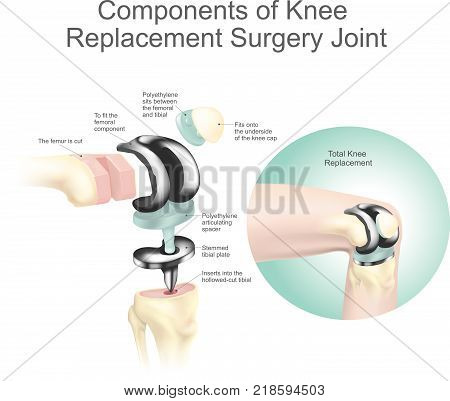 Components of knee replacement surgery joint. Health care. Anatomy body human.