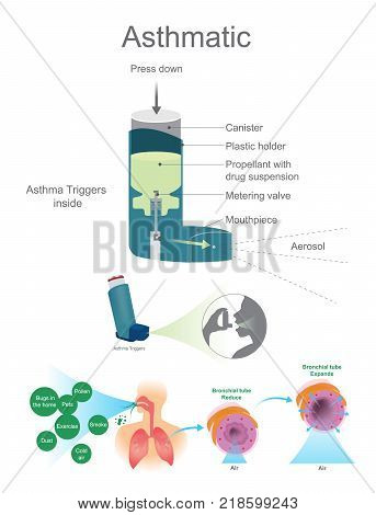 Asthmatic Airway Cells include lung fibroblasts bronchial epithelial and bronchial smooth muscle cells.