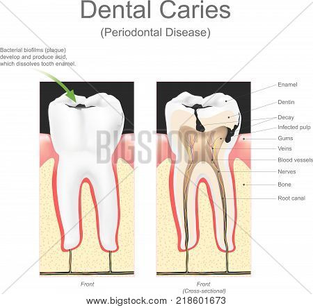 Dental caries periodontal disease. Dental caries is the scientific term for tooth decay or cavities. It is caused by specific types of bacteria. They produce acid that destroys the tooth's enamel and the layer under it, the dentin.
