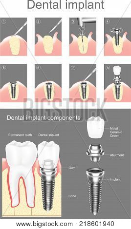 Dental implant is an artificial tooth root that is placed into your jaw to hold a replacement tooth or bridge. Dental implants may be an option for people who have lost a tooth or teeth due to periodontal disease an injury or some other reason.