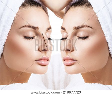 Comparison portrait of female nose before and after cosmetic surgery. Rhinoplasty concept.