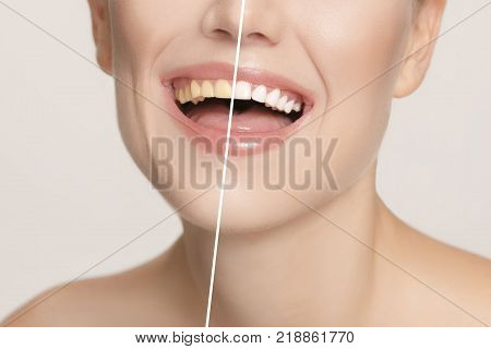 The female teeth before and after whitening. Collage with before and after concept