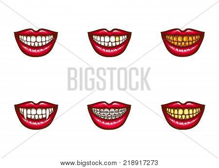 Set of vector red female lips with white healthy teeth and perfect smile, with vampire fangs, with metal dental crowns and implants, with braces. Pop art style illustration. Clipart for dental design