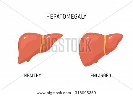 Enlarged Liver Hepatomegaly Disease Icon. Human Liver Health Illustration Anatomy Design