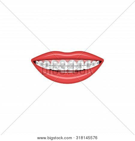 Wide Female Smile With Teeth And Braces Sign For Orthodontist Cabinet Medical Illustration
