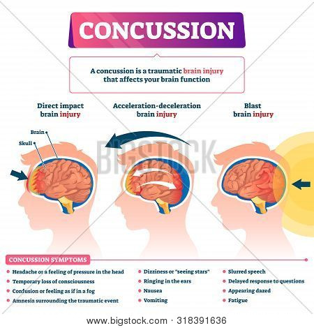 Concussion Vector Illustration. Labeled Educational Post Head Trauma Scheme. Medical Explanation Wit