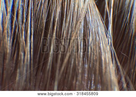 The Hair Line On The Man Forehead