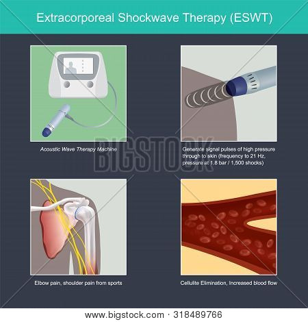 The Illustrate Explain Benefit Of The Instrument For Medical Use, By Treatment Elbow Pain And Should