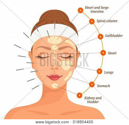 Session Of Chinese Traditional Medicine. Acupuncture Treatment Of Internal Organs. Vector.