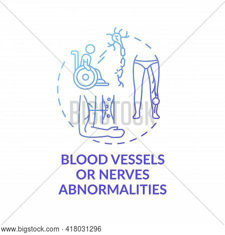 Blood Vessels And Nerves Abnormalities Concept Icon. Amputation Cause Idea Thin Line Illustration. S