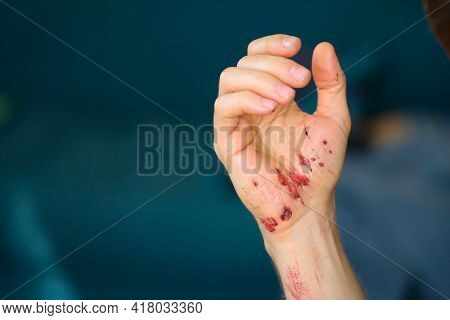 Abrasions On The Palm And Scratches On The Right Arm Of An Adult Man. Home Treatment.