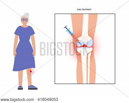 Knee Injection Concept. Old Age Woman In Clinic. Disease Of Osteoporosis Arthritis, Pain Inflammatio