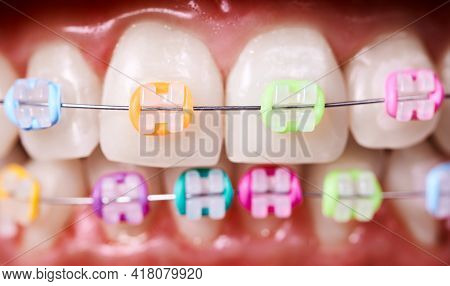 Close Up Of White Teeth With Wired Orthodontic Braces. Patient Demonstrating Dental Brackets With Mu