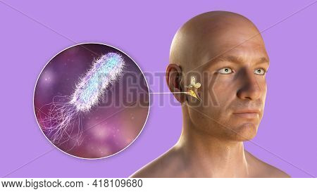 Pseudomonas Aeruginosa Bacterium As A Cause Of Otitis Media. 3d Illustration Showing Purulent Inflam